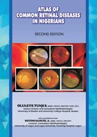 The Atlas of Retinal Diseases in Nigerians