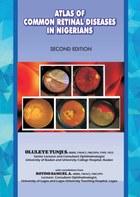 The Atlas of Retinal Diseases in Nigerians
